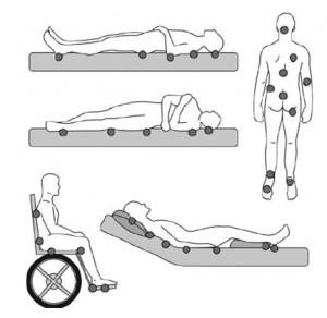 escaras posiciones
