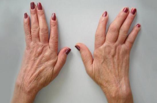 manos artritis reumatoide