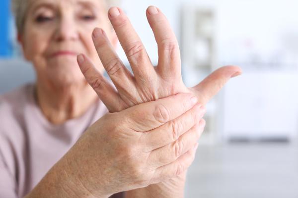 artritis reumatoide en manos