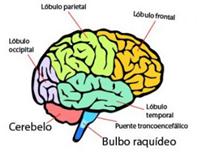 cerebro ictus